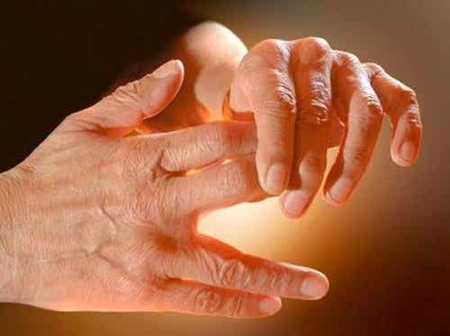 Oorzaken van een tinteling in je armen en benen