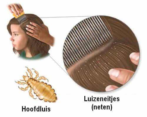 5 huismiddeltjes tegen hoofdluis