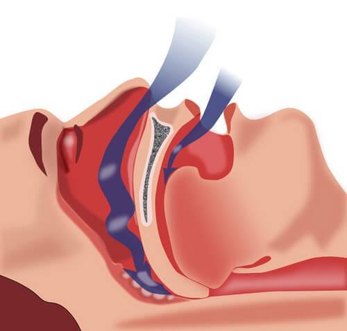 Natuurlijke behandelingen voor slaapapneu