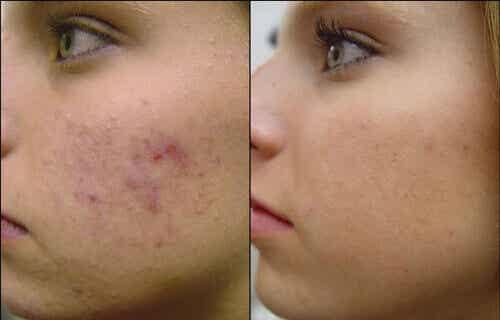 4 zelfgemaakte gezichtsmaskers tegen acne