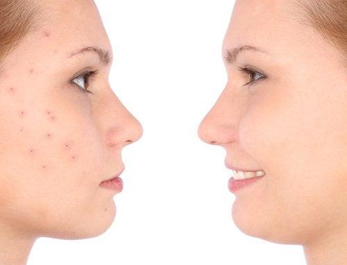 Acne elimineren met appelazijn