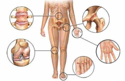 Pijn van artritis verlichten met deze 8 kruiden