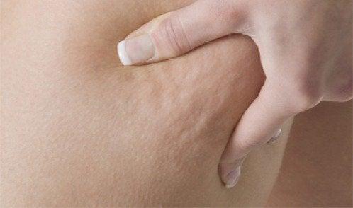 Cellulite bestrijden met 3 medicinale infusies