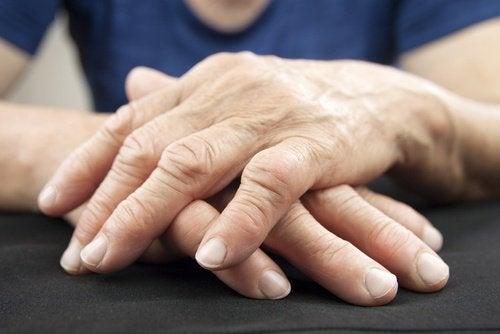 gewrichtspijn-handen