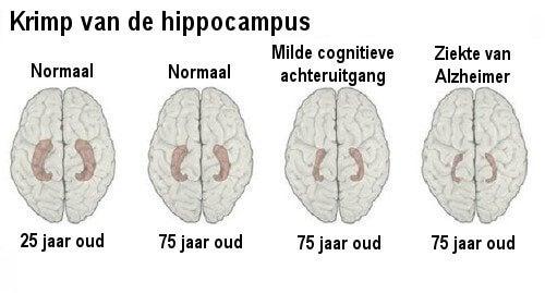 Herken de vroege tekenen van Alzheimer