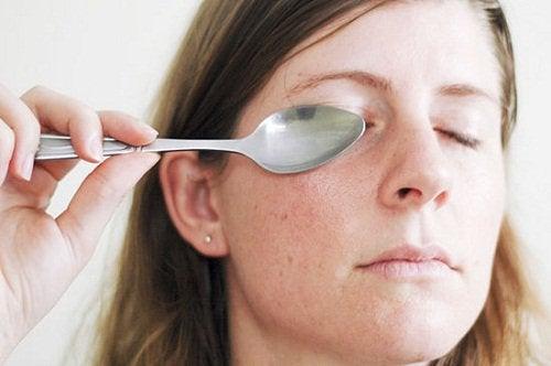 Vrouw drukt koude lepel tegen oog