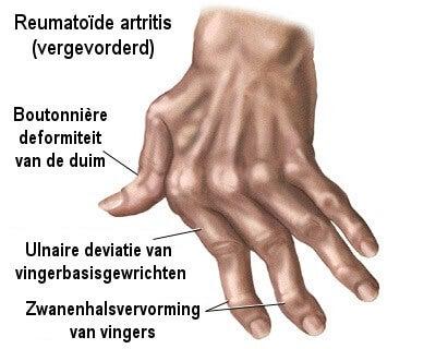 7 natuurlijke middelen tegen artritis in de handen