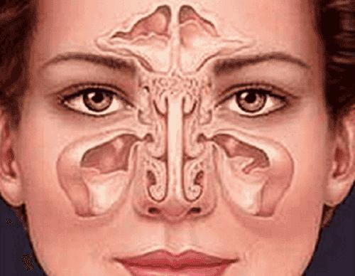 Sinusitis op natuurlijke wijze behandelen