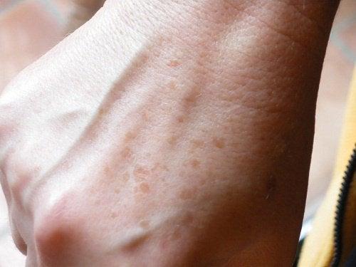 sproeten-hand