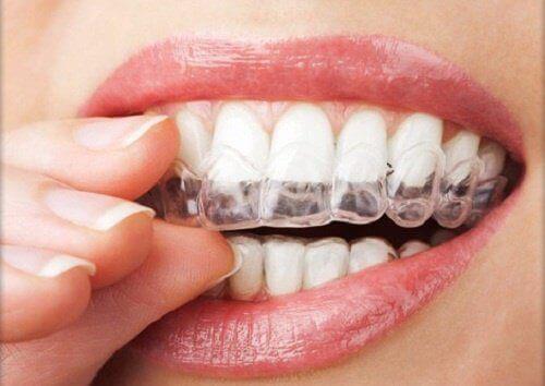 tandenknarsen