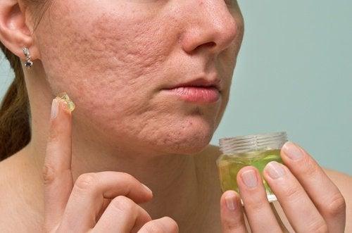 natuurlijke middelen tegen acne