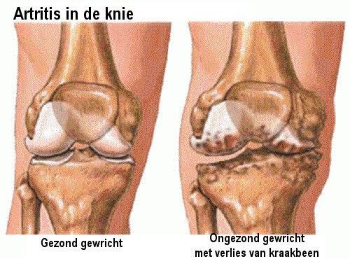 Artritis in de Knie