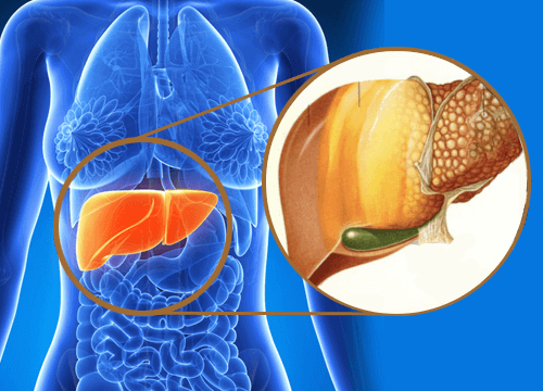 Wat is leververvetting? Hoe kun je het behandelen?