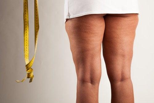 Cellulite verminderen met kaneel
