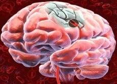 Hersenen, bloed, gezondheid