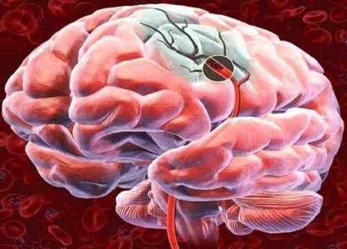 Hoe de bloedtoevoer naar de hersenen te verbeteren