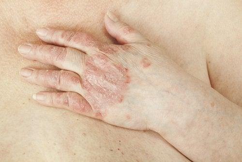 huidaandoeningen jeuk