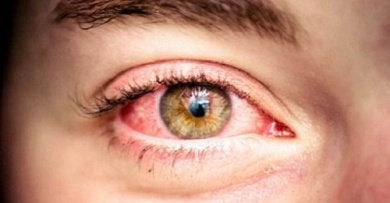 Rode en waterige ogen moeten behandeld om gezonde ogen te krijgen
