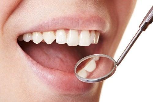 Thuis van tandplak afkomen