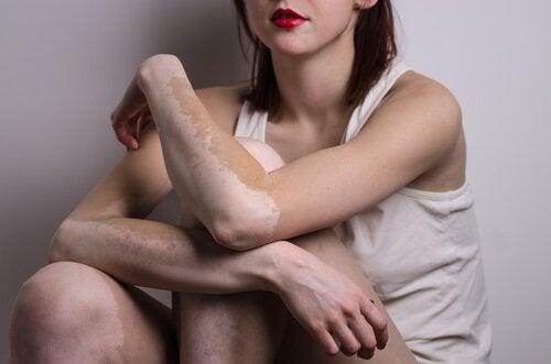 Vitiligo op de Armen