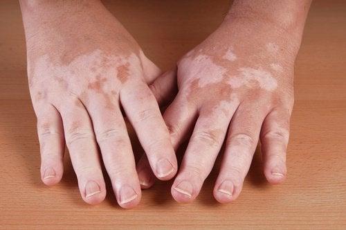 Vitiligo Handen