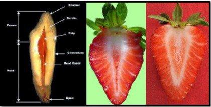 Aardbeien en Tanden