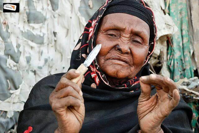 Genitale verminking bij vrouwen