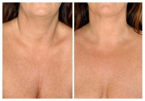 Beste natuurlijke huidbehandelingen voor je hals