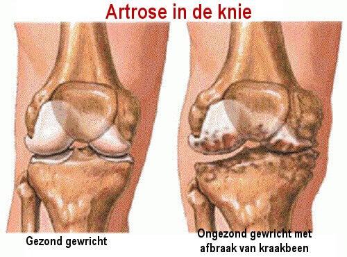 artrose in onderrug