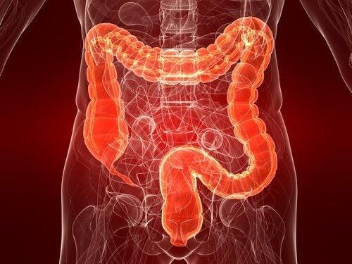 Colitis ulcerosa: oorzaken en behandelingen