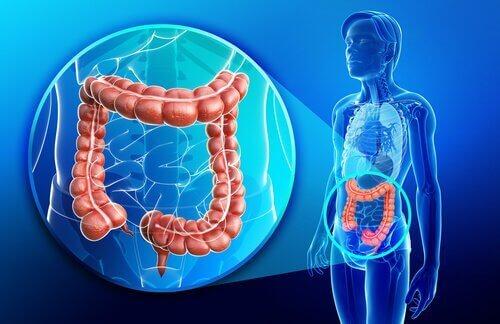 5 tips om aanvallen van colitis ulcerosa te vermijden