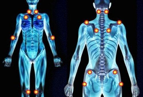 De triggerpoints van fibromyalgie
