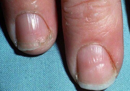 Broze nagels
