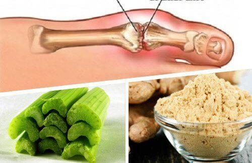 urinezuur verlagen met homeopathie