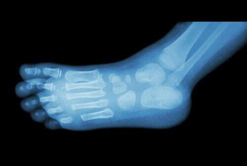 Röntgenfoto Voet