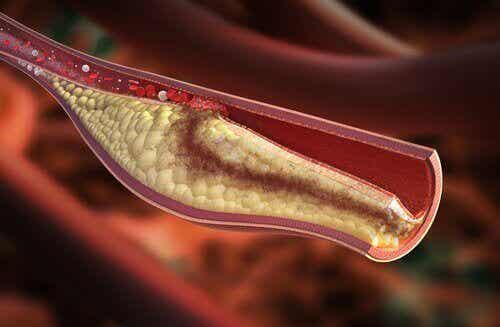 Symptomen van een hoog cholesterolgehalte