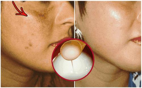 Zelfgemaakte crème om je huid lichter te maken