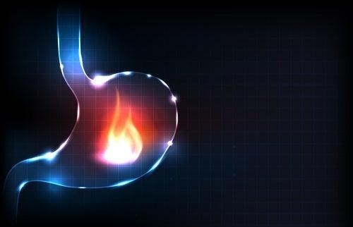 maag met brandend maagzuur