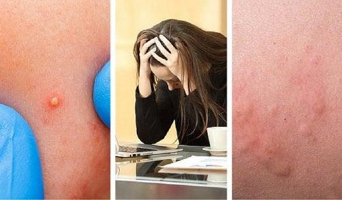 7 tekenen dat je stressniveau te hoog is