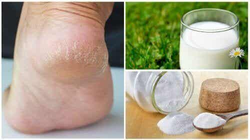 Zachte voeten door slechts twee natuurlijke ingrediënten