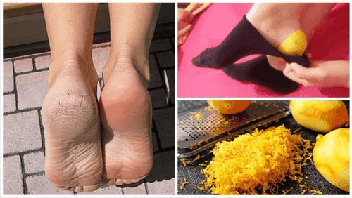 Gebruik citroenschil voor gezonde voeten