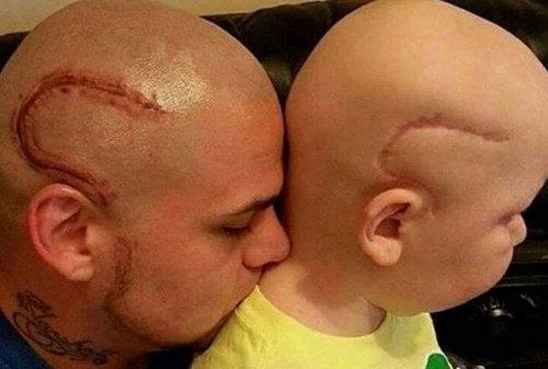 Vader laat tattoo zetten van litteken van zoons operatie