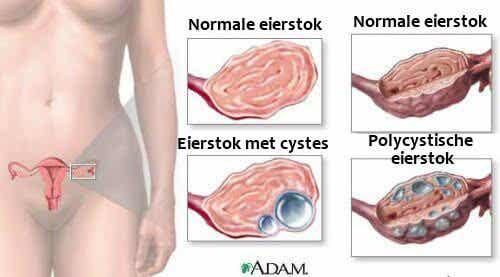 Wat elke vrouw moet weten over ovariumcysten