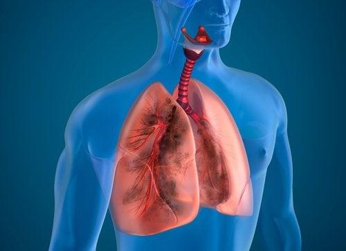 Natuurlijke ingrediënten om rokerslongen te reinigen