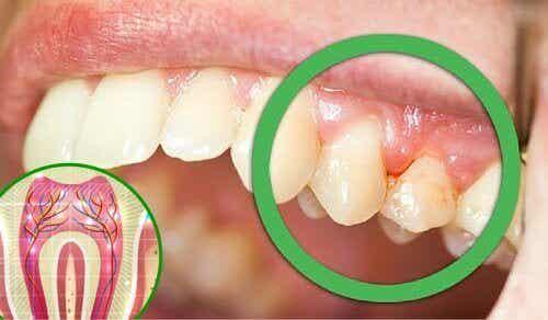 Zes redenen waarom je last kunt hebben van tandpijn