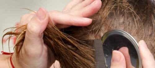7 natuurlijke manieren om van hoofdluis af te komen