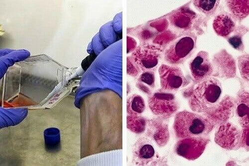 Wetenschappers ontdekken therapie waardoorleukemiecellen zichzelf aanvallen