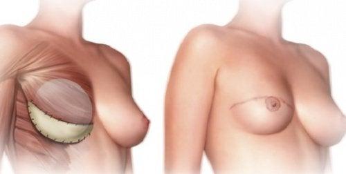Wat zou je voorafgaand aan een mastectomie moeten weten?