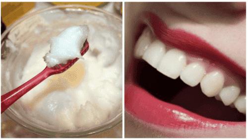 Zeg maar dag tegen vervelende mondproblemen