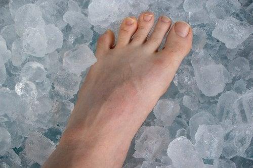 Voet in ijs tegen eeltknobbels